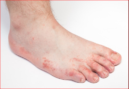 Fungus Foot: Symptoms, Prevention And Those At Risk