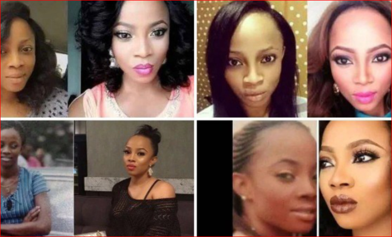 Skin Bleaching; Side Effects, Warnings And Safer Alternatives