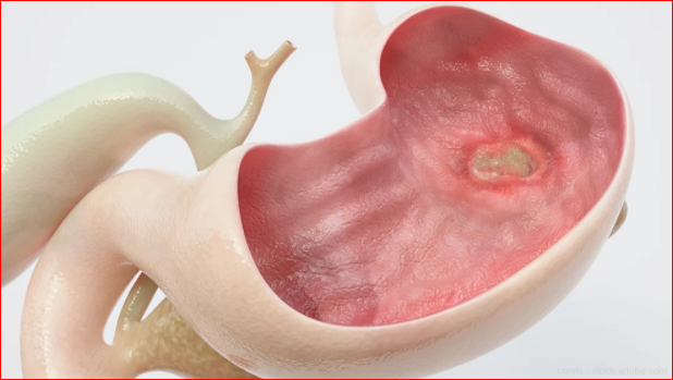 The Dietary Remedy For Ulcer Problem